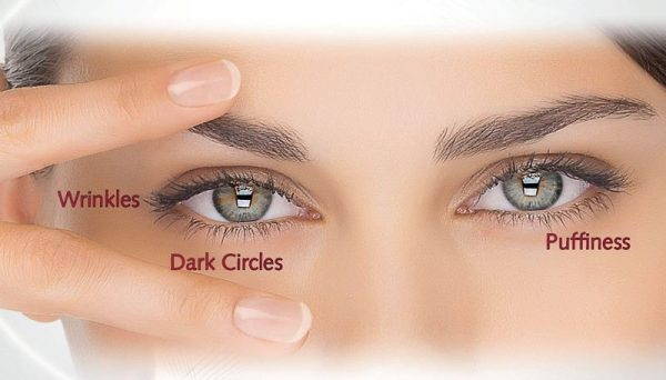 donkere_kringen_wallen-behandeling